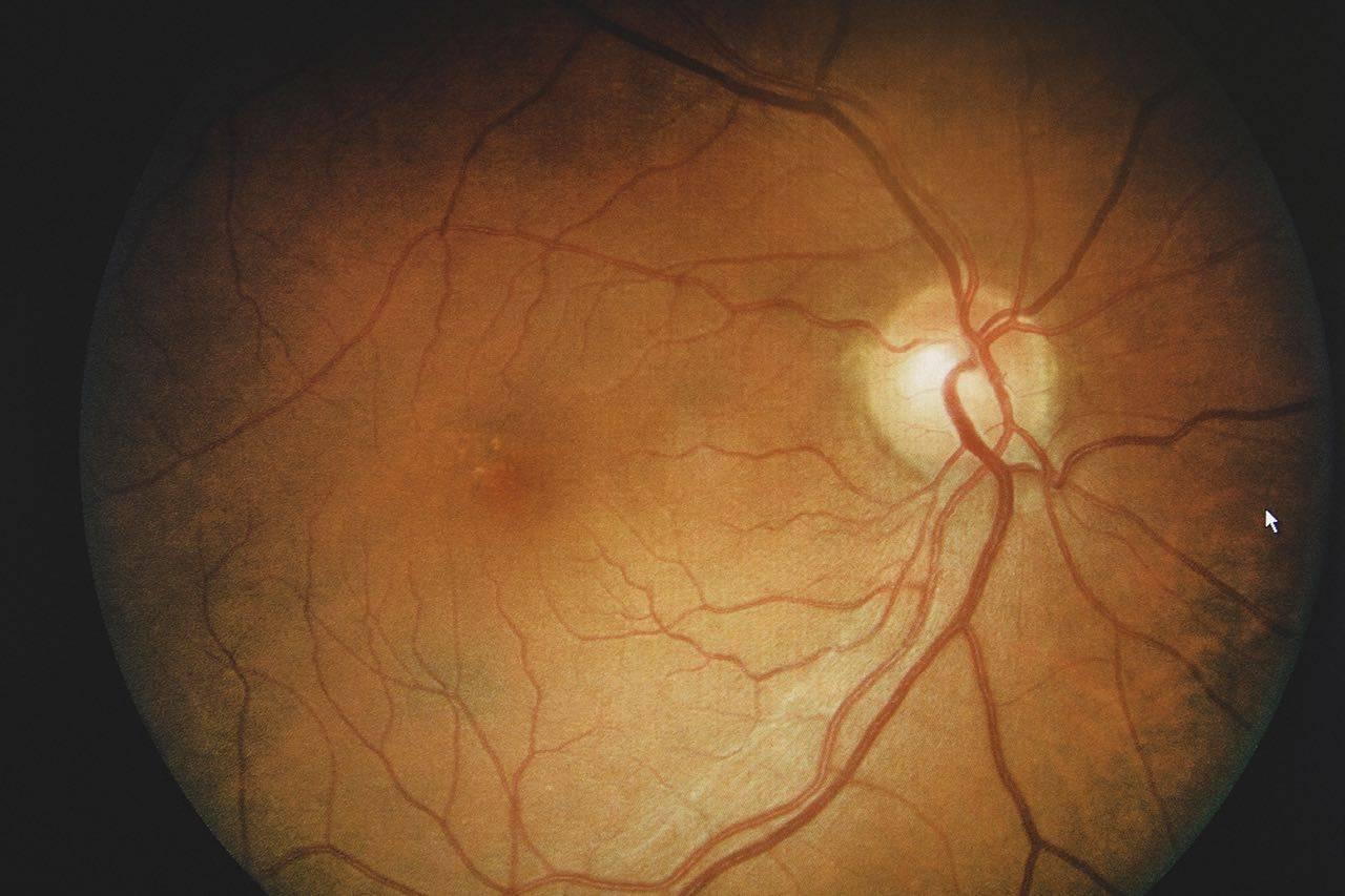 bkground_eyeball_veins bkground_med