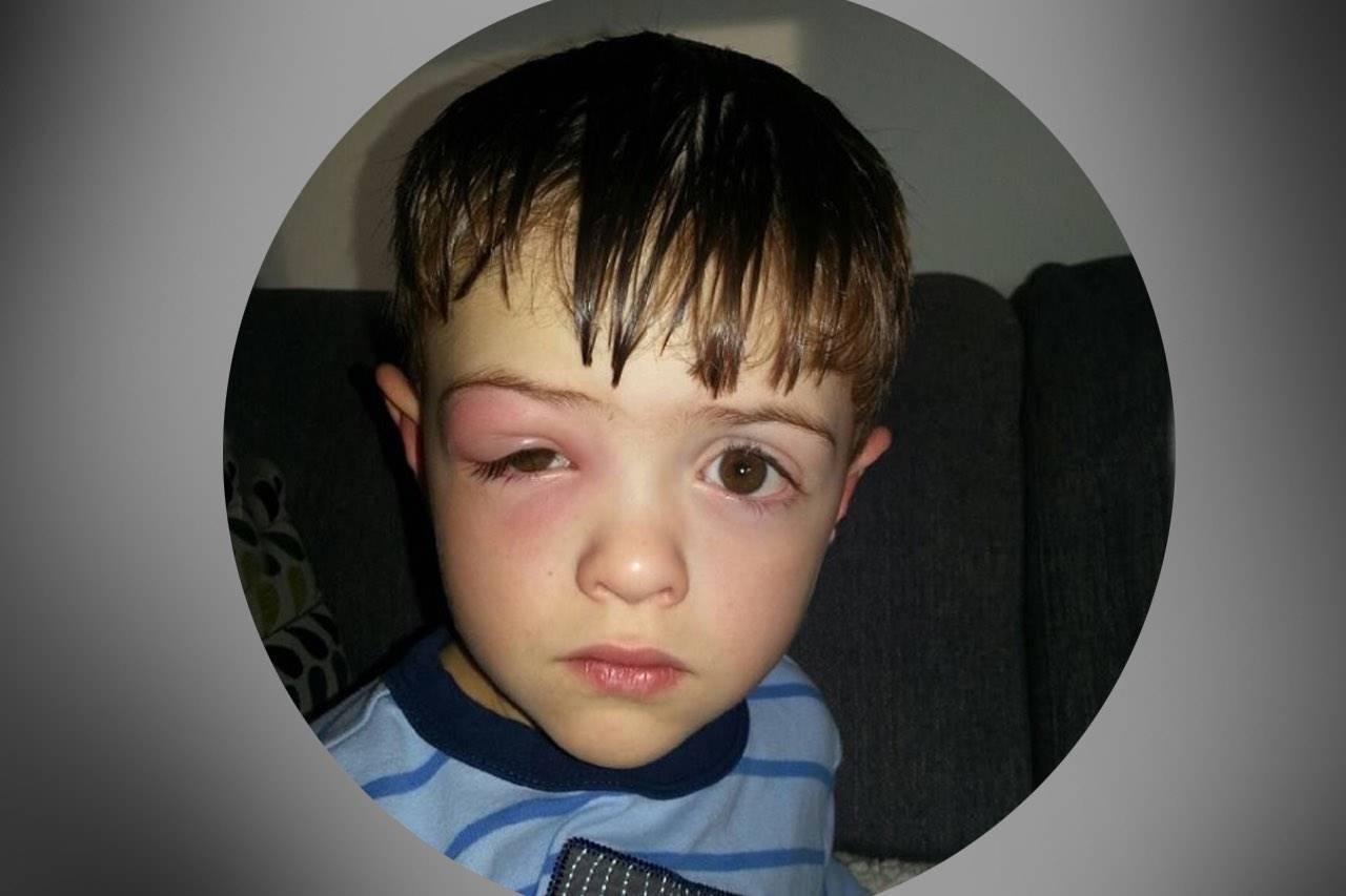 eye issue sore eye boy