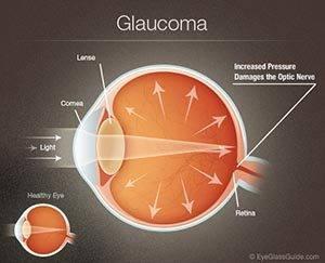 glaucoma optometrist fort hood