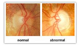 Glaucoma Eye Exam, Optometrist, Tempe, AZ