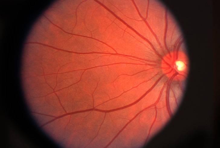 Retina-small