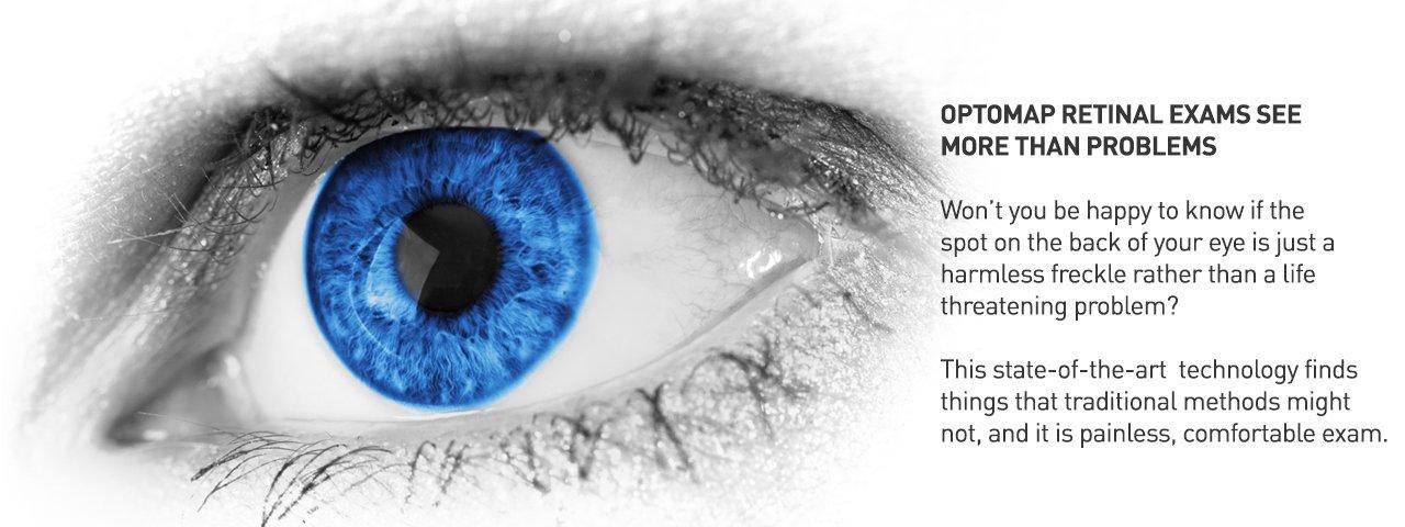 Optomap2-Technologies%201280x480