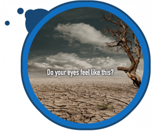 dry eyes care in North San Jose