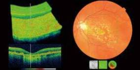 oct eye exam in calgary
