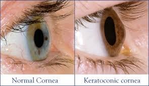 keratoconus_1