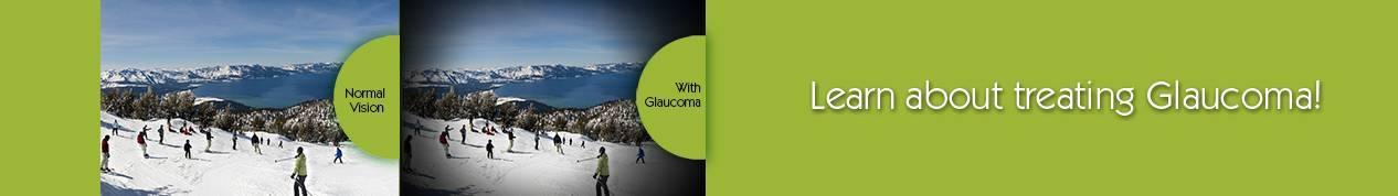Glaucoma eye doctor fort hood