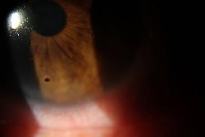 Emergency Eye Care Galveston TX