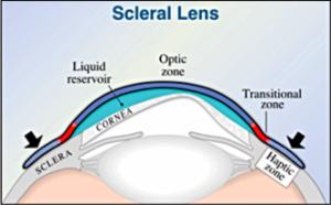 Scleral Lens Diagram