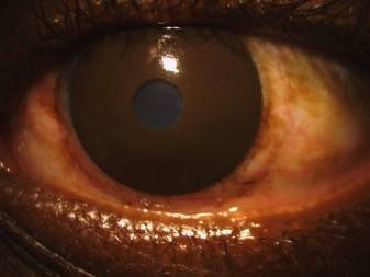 Black outline of Scleral Lens on an actual eye - Baltimore, Maryland