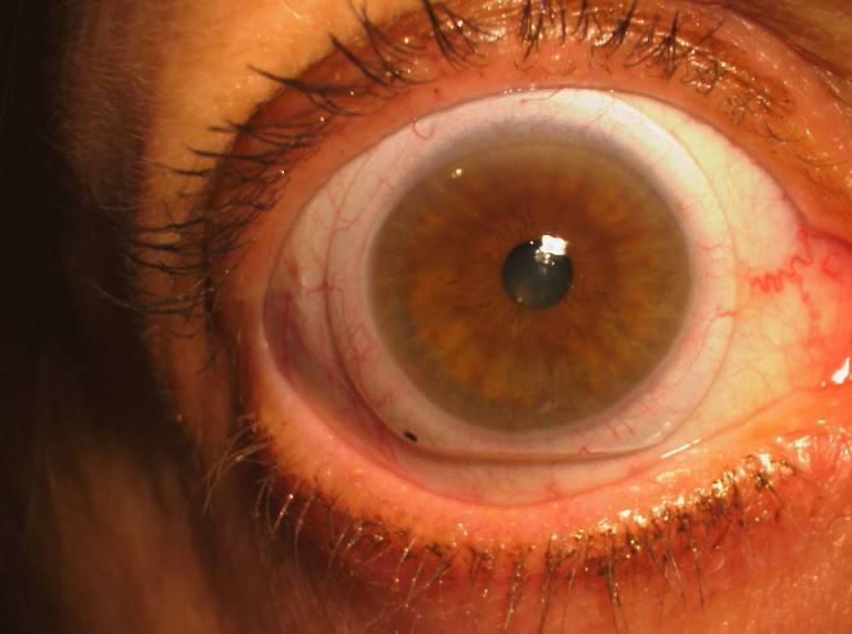 scleral-lens-1-768x572