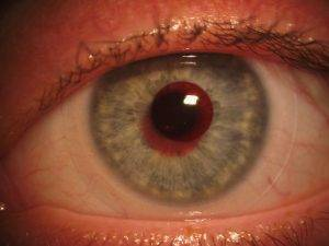 Example of a specialty contact lens that treats color blindness