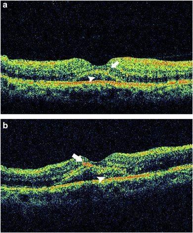 Executive Park Eye Care In Colorado Springs Our Optical Coherence Tomographer