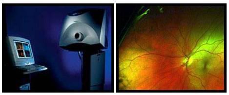 Executive Park Eye Care In Colorado Springs Our Optomap Collage