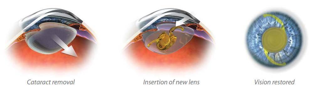 alcon cataract graphic