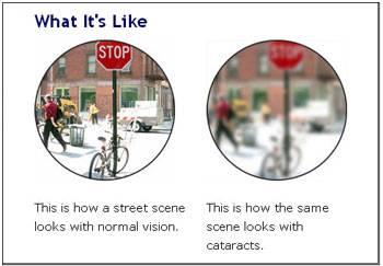 sim cataract