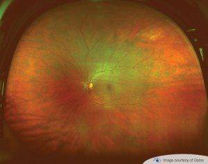 optomap eye exam Alafaya FL