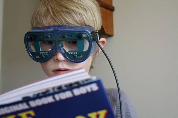 Vision Therapy to treat Strabismus