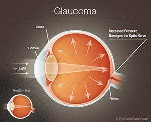 Glaucoma in Sugar Land