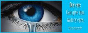 dry eye can give your watery eyes
