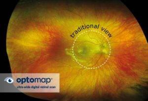 optomap-scan