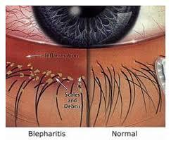 blepharitis_1