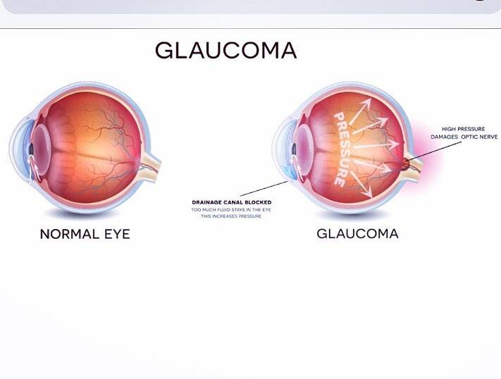 Glaucoma-picture