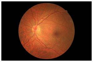 glaucoma detection