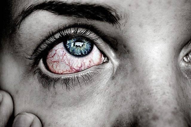 Close up of man with pink eye, in Camas, WA