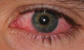 Eye Infection treatment at eye care center ky