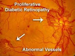 diabetic retinopathy in the woodlands