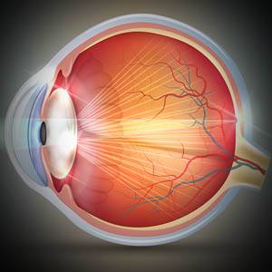 Cataracts, More+