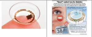 As An Example The Sensimed Triggerfish Glaucoma Or Diabetic Monitor Via A Contact Lens Mounted Sensor