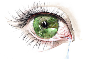 Eye Conditions