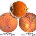 Diabetic Eye Disease 150x150