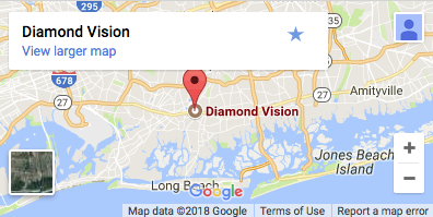 diamond vision location map