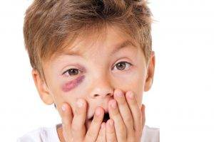 Boy with Black Eye, Eye Doctor, Bethlehem & Allentown, PA