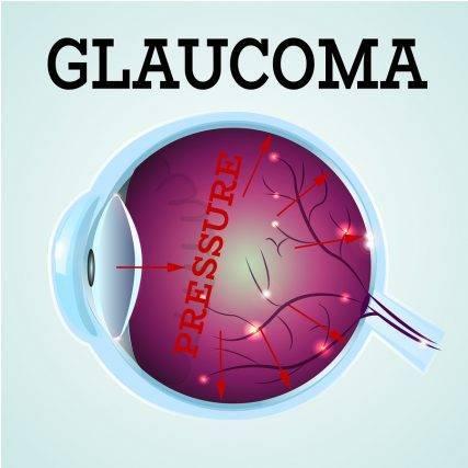 glaucoma-longview-tx