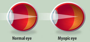 myopia graphic, optometrist, eye exam, Milton, ON