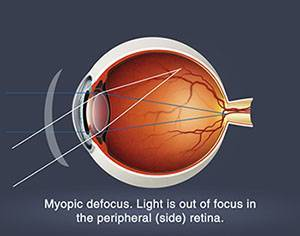 Myopia Control Treatment in Humble, TX