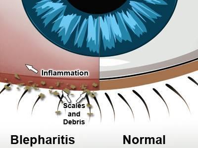 Blepharitis Treatment at TSO Humble