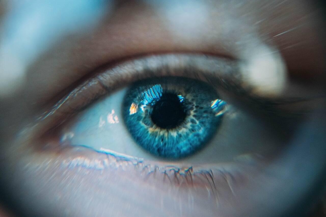Optometrist, eye woman with eye allergy in Garden Grove, CA