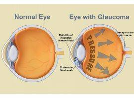 glaucoma eye3