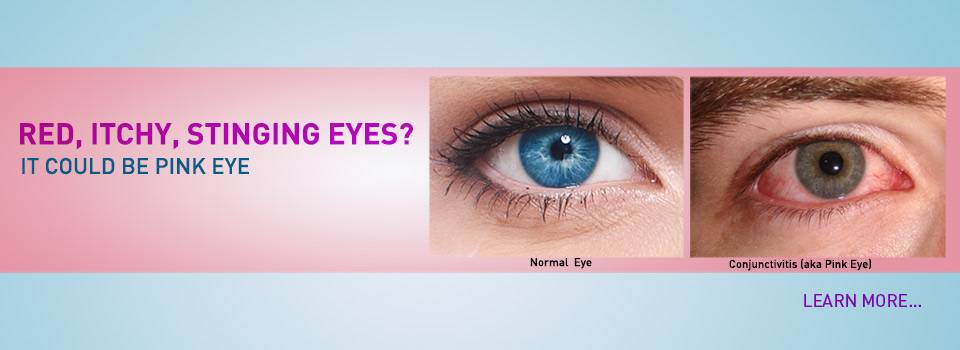 red, itchy, stinging pink eyes? It could be pink eye