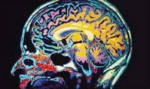 brain vision therapy image