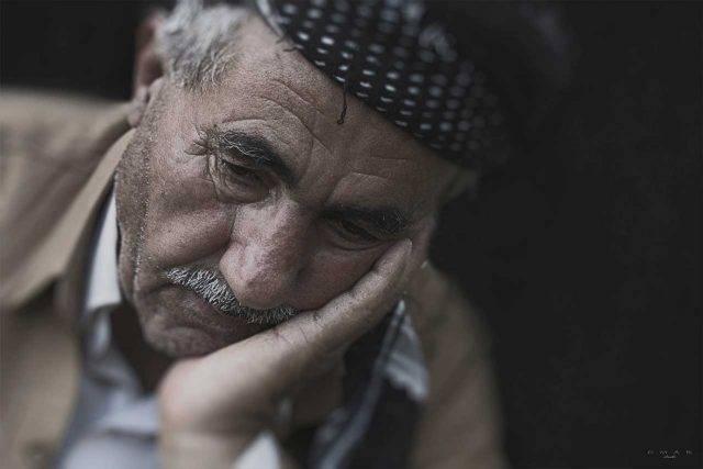 Man Suffering from Eye Disease Damaging Cornea