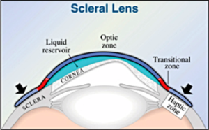 Scleral Lens Diagram