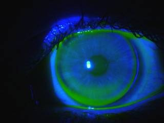 Blue Overlay of Scleral Lens on Eye - Baltimore, Maryland