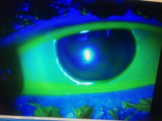 eye-cornea-transplant_compressed-569x427