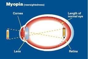 Myopia-diagram1