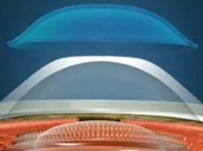 corneal moldings05
